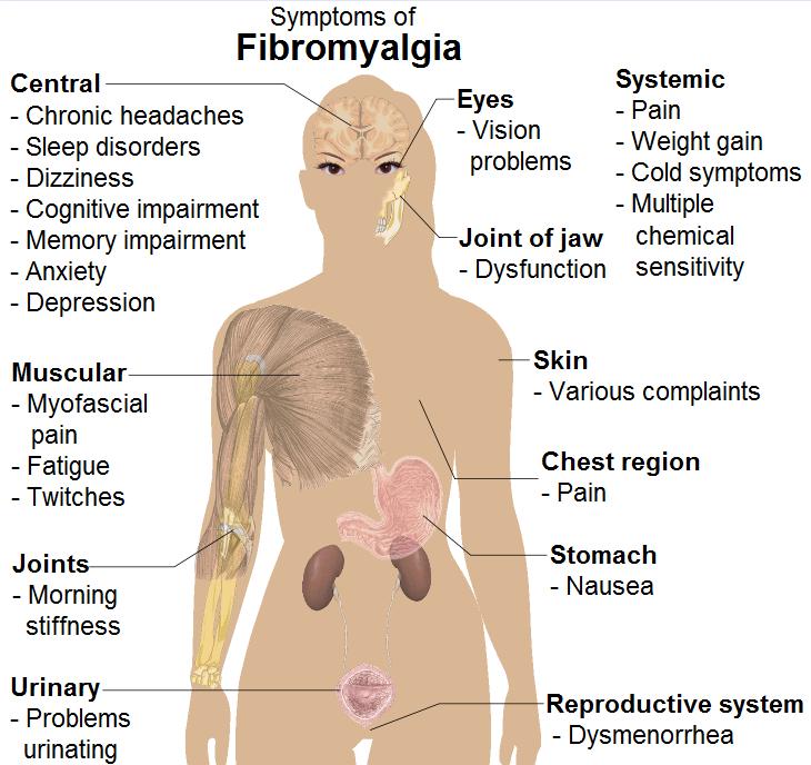 Symptoms_of_fibromyalgia.png